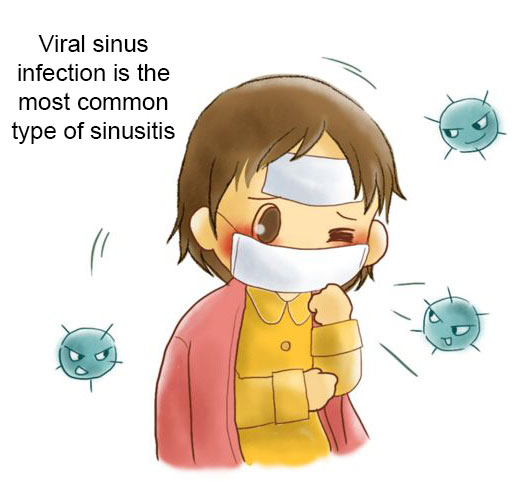 Bacterial sinusitis is a complication of viral sinusitis