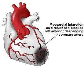 articles on myocardial infarction