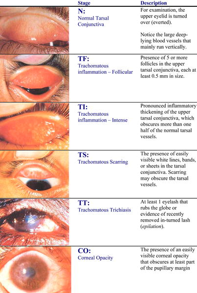 Trachoma (diagnosis -treatment) photos videos trachoma3.jpeg