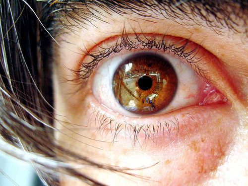 Eye Infections Due To Contact Lens Explained