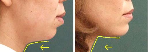 how to tell if you have sleep apnea