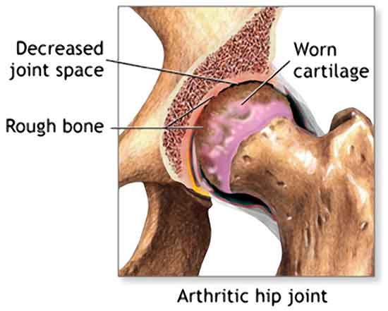 Ladies, Do You Feel Pain Below Your Hip Joints?
