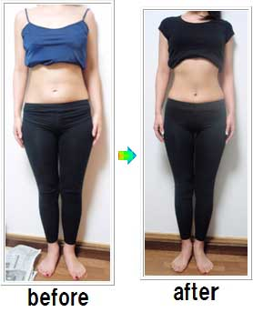 Do any drugs make you lose weight image 10