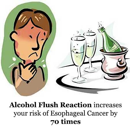 Alcohol Flush Reaction Can Increase Risk of Esophageal Cancer