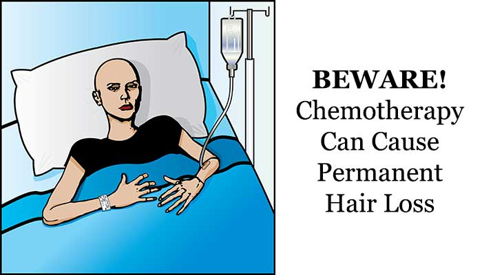 Chemotherapy can result to permanent hair loss
