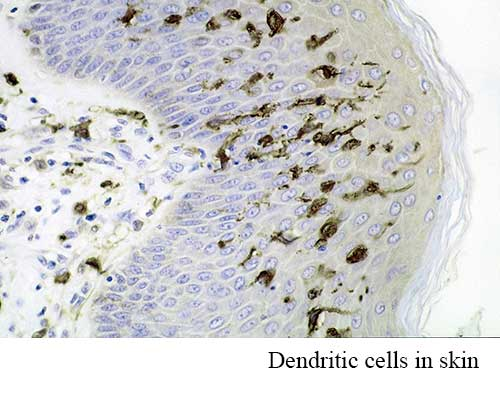Dendritic Cells in Skin