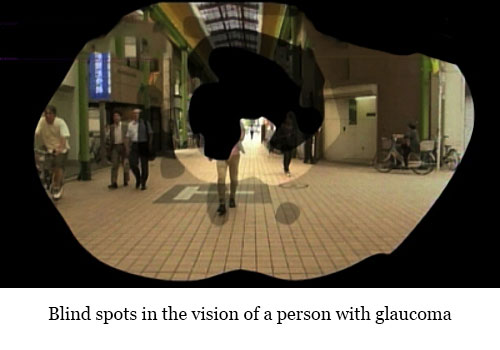 Glaucoma Blind Spots