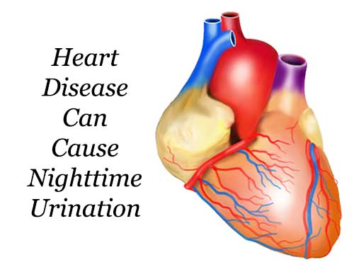 Heart disease can cause Nighttime urination
