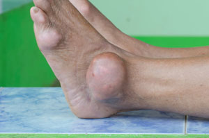 will vitamin c reduce uric acid gout treatment vitamin c diet for gout patients in india