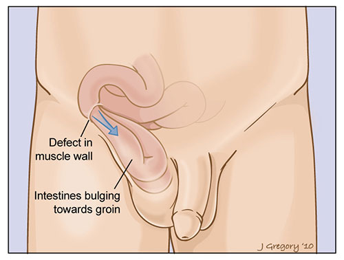 inguinal hernia can cause sudden stomach pain, Cephalic vein